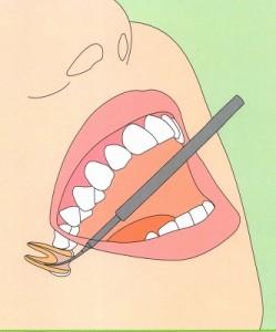 歯の神経治療(根管治療) 歯の神経を取る治療