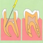 歯の神経を抜かずに治療するためには「完全封鎖」できるかどうかです。