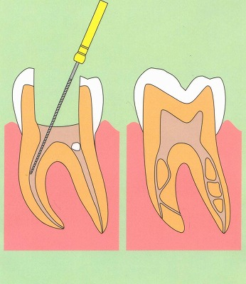 神経 歯 抜く の 歯の神経抜いた後、日を追う毎、痛みが強くなってきています。