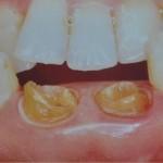歯を抜くか抜かないかの判断基準があります