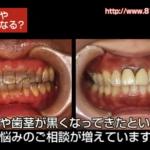 治療した歯や歯茎が黒くなっていく原因とは?