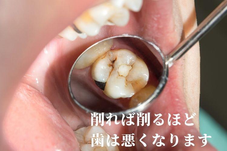 削らない虫歯治療なら高松市の吉本歯科医院