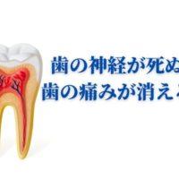 歯の神経が死ぬと歯の痛みが治まる