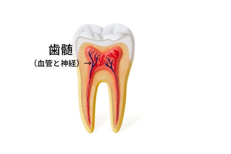 歯の神経が死んだ状態