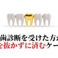 歯の神経取った歯が痛い原因
